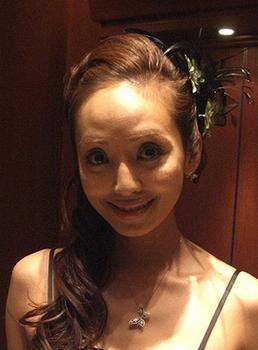 神田うのの額の整形画像.png